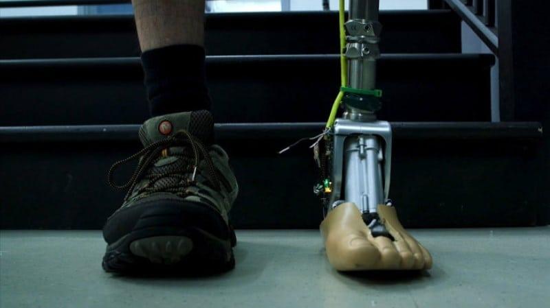 Akıllı prostetik bilek yüzeye göre kendini ayarlayabiliyor